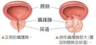 良性前列腺增生  (攝護腺肥大)